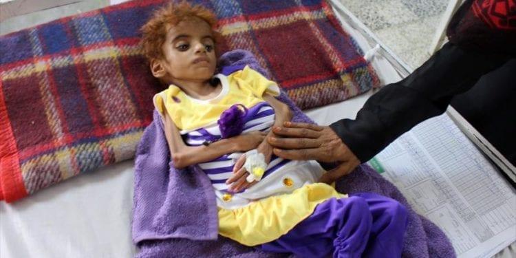 La OCHA presenta al Consejo de Seguridad un plan para impedir una hambruna de proporciones históricas en Yemen